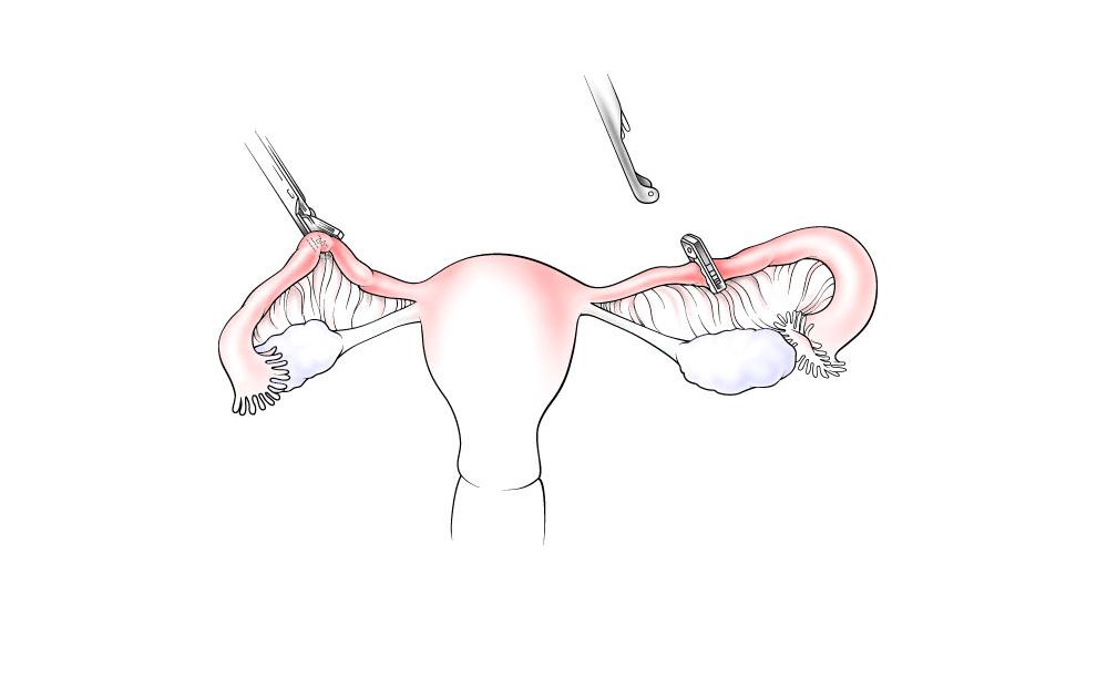 tubal ligation illustration